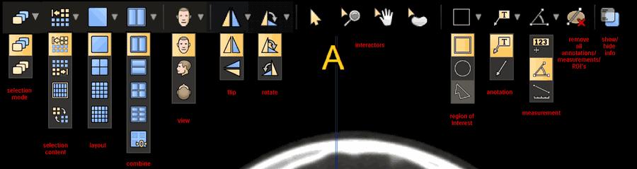 Onderdeel van medisch computerprogramma met verschillende iconen onder elkaar als uitklapmenu.
