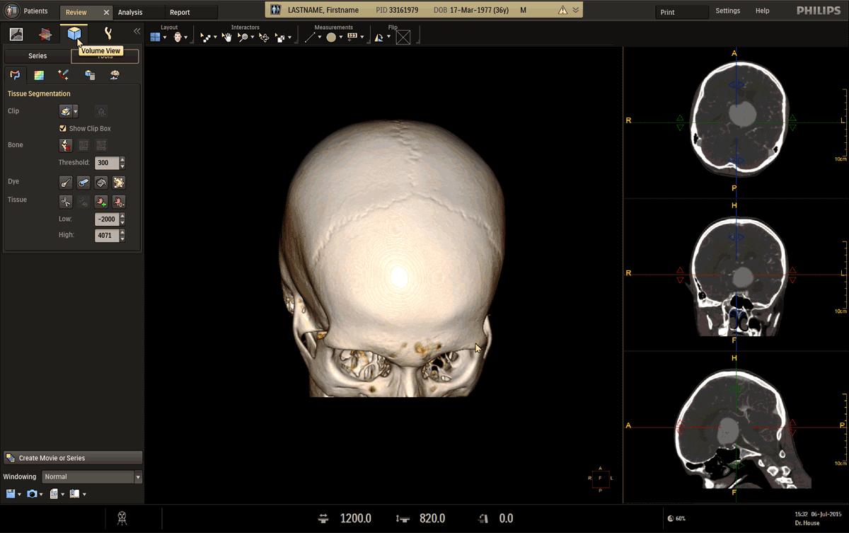 Beeldscherm ontwerp van een medische toepassing met daarop een drie dimensionale scan van een deel van de schedel en gereedschappen om het te bewerken.